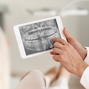 X-Ray of teeth shown on tablet